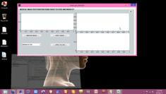 Ultrasound image noise reduction | Speckle noise removal_Img